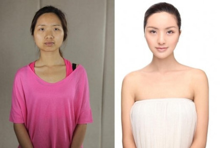 32 Crazy Before And After Photos Of Korean Plastic Surgery